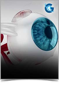 Ophthalmology Research and Reports