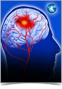 International Journal of Cerebrovascular Disease and Stroke