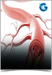 Atherosclerosis Research and Reviews