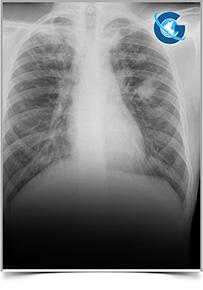 Advance Research on Tuberculosis & Therapeutics