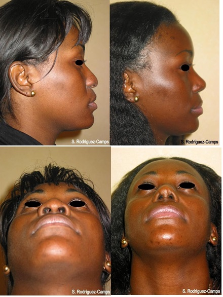 rhinoplasty a new technique to treat the extremely difficult